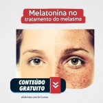 Melatonina tópica e oral no tratamento do melasma